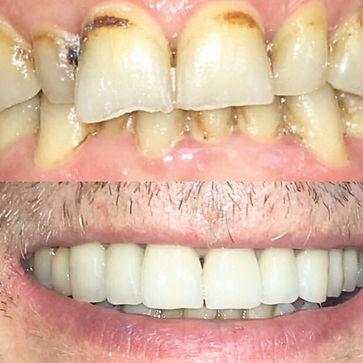 Centre dentaire à Paris, Le Loft Dentaire est un  Laboratoire de prothèses dentaires à Paris  100% Made in France. Centre dentaire spécialisé en esthétique dentaire à Paris, Prothése dentaire, blanchiment des dents et implants dentaires à Paris ( 75 )