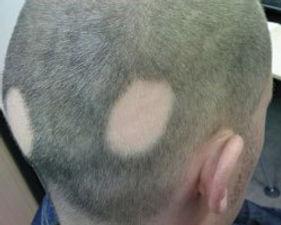 全頭脱毛症は、頭のすべての髪が抜けるときです。これには眉毛とまつげが含まれます。全身が脱毛すると、全身性脱毛症と呼ばれます。    アンドロゲン性脱毛症は、男性と女性の両方に影響を与える可能性があります。  それは頭皮の永久的な脱毛につながる可能性があります。