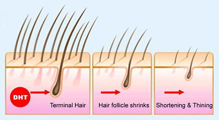 脱毛と薄毛は、甲状腺ホルモンのバランスが崩れている可能性があることを示している可能性があります。甲状腺機能低下症と甲状腺機能亢進症の両方が髪の毛を脱毛させる可能性があります。