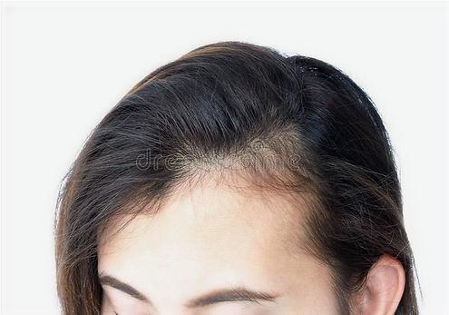 人が髪を失うかもしれない理由はいくつかあります。  内部と外部の理由があります。  原因は、ストレス、遺伝学、外傷、または毛包への圧力、化学物質、および栄養失調です。    栄養失調や飢餓、摂食障害は髪の成長に影響を与えます。  これらの場合、髪は抜け落ち、薄くなり始め、もろくて壊れやすくなり、色素を失い、しなやかになり、栄養素の不足からその「輝き」を失う可能性があります。