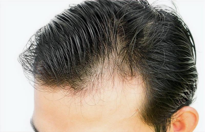 瞬間増毛で自然に毛髪がフサフサ