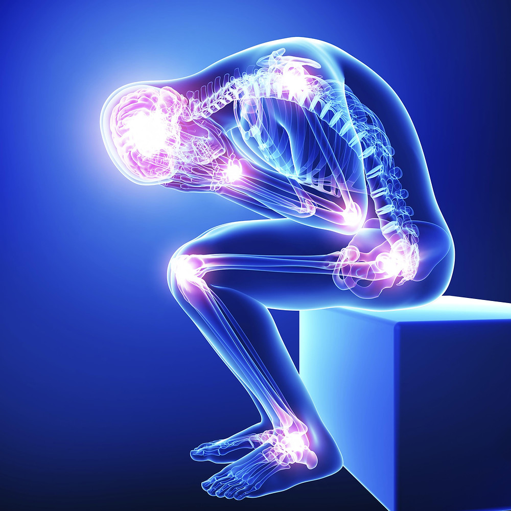 Neurological Pain Affects all the body