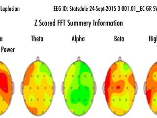 Turning Off the Fear Switch (EEG)