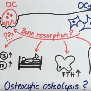 Can hyperthyroidism affect bone health?