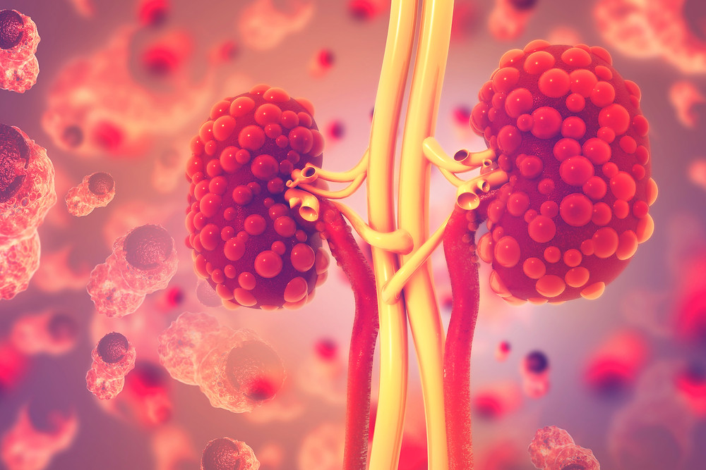 Protavio develops diagnostics for Chronic Kidney Disease