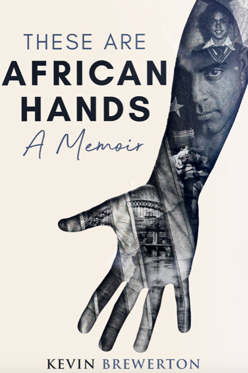 These Are African Hands