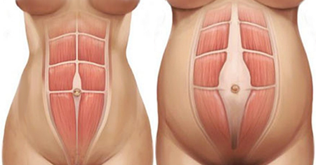 Diastasis Recti - The Dreaded 'Mummy Tummy'