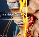 chiropractic treatment for disk heniation near american fork and orem utah