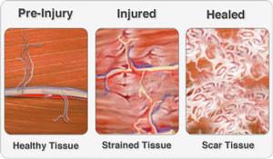 Acute injury