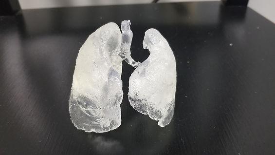 CoVID-19 Lungs.jpg