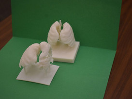 Modeling The Lungs Of A Covid Patient