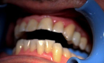 WEBSITE%20IMPLANT%20AFTER%20FRENCHjpg_ed