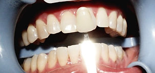 WEBSITE%20TOOTH%20WHITENING%20AFTER_edit