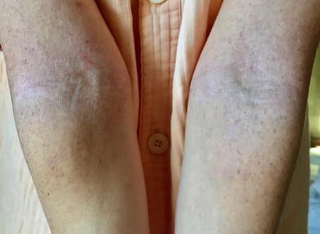 アトピー性皮膚炎【冷えとり日記】③
