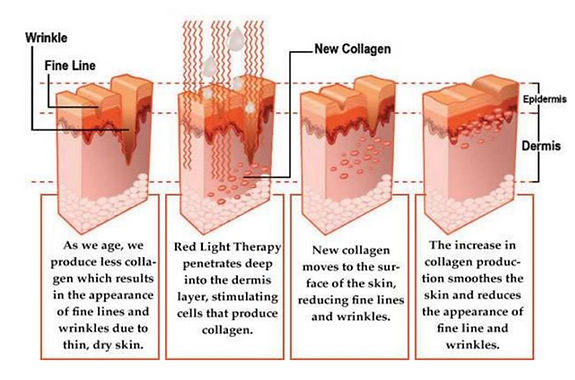 Collagen Red Light Therapy Benefits