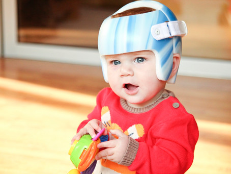 Torticollis and Plagiocephaly