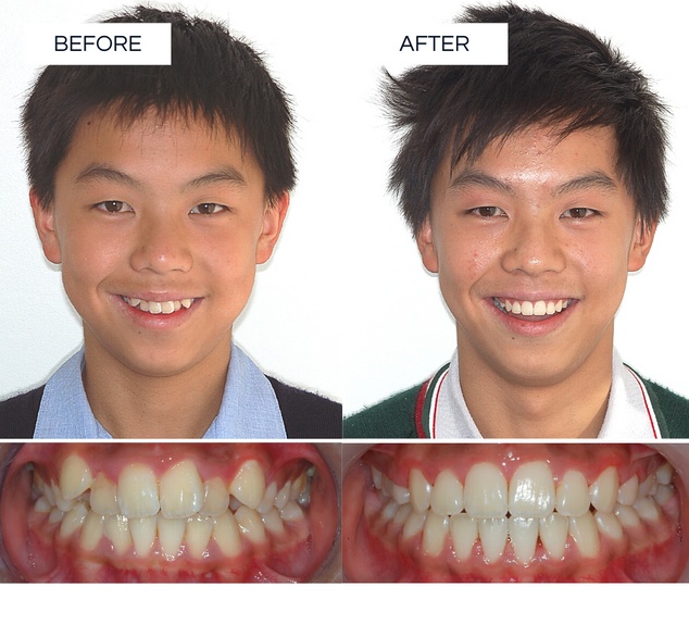 North Shore Orthodontics BEFORE AFTER.pn