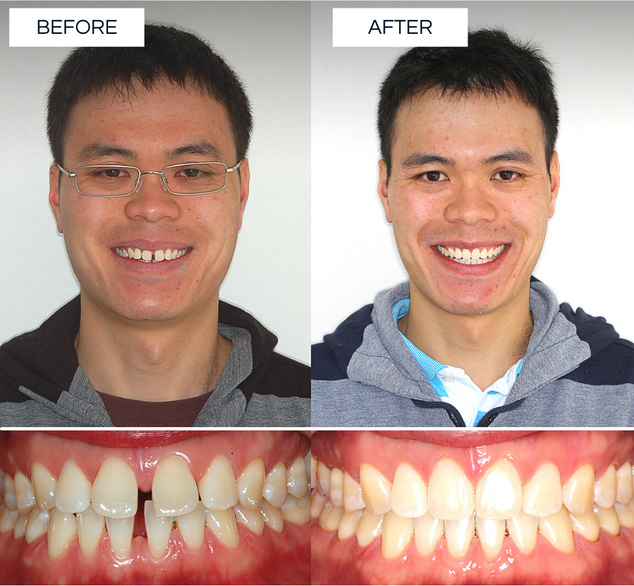 North Shore Orthodontics BEFORE AFTER (4