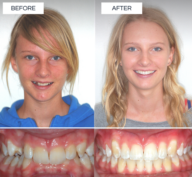 North Shore Orthodontics BEFORE AFTER (