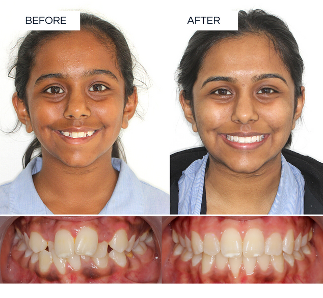 North Shore Orthodontics BEFORE AFTER (1