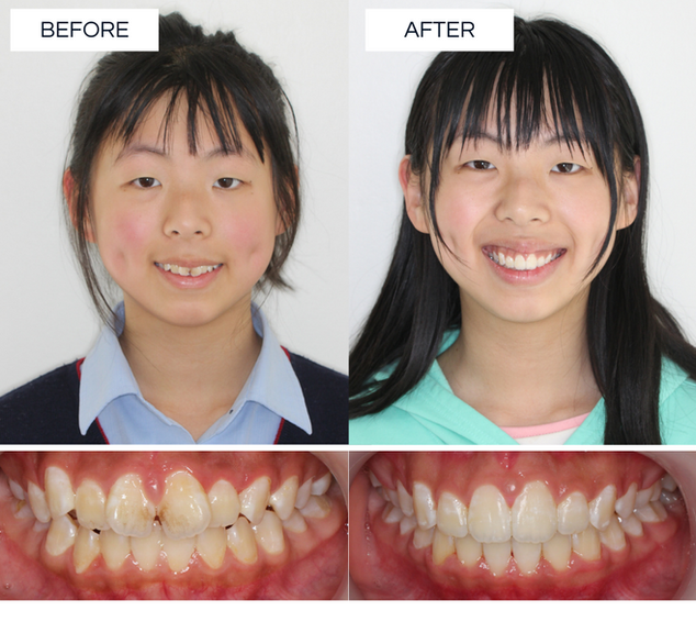 North Shore Orthodontics BEFORE AFTER (3