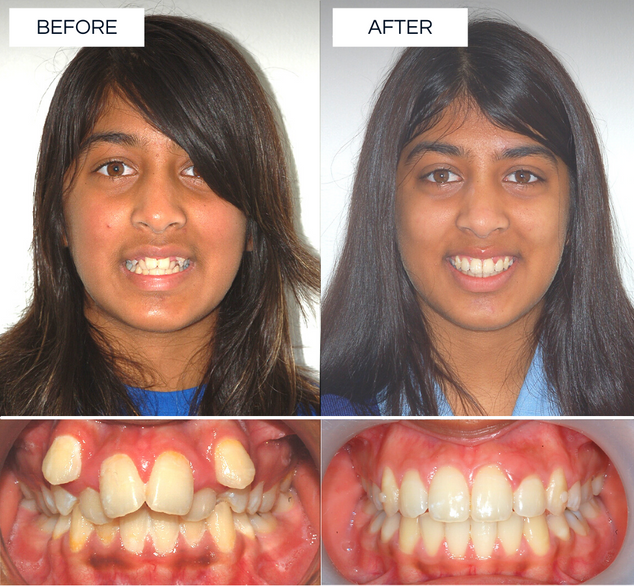 North Shore Orthodontics BEFORE AFTER (2