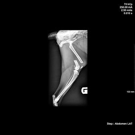 Fractured tibia