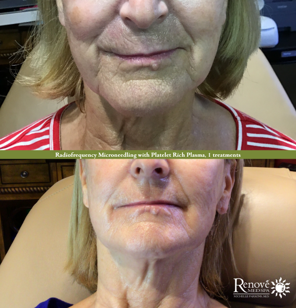 Radiofrequency Microneedling with Platelet Rich Plasma
