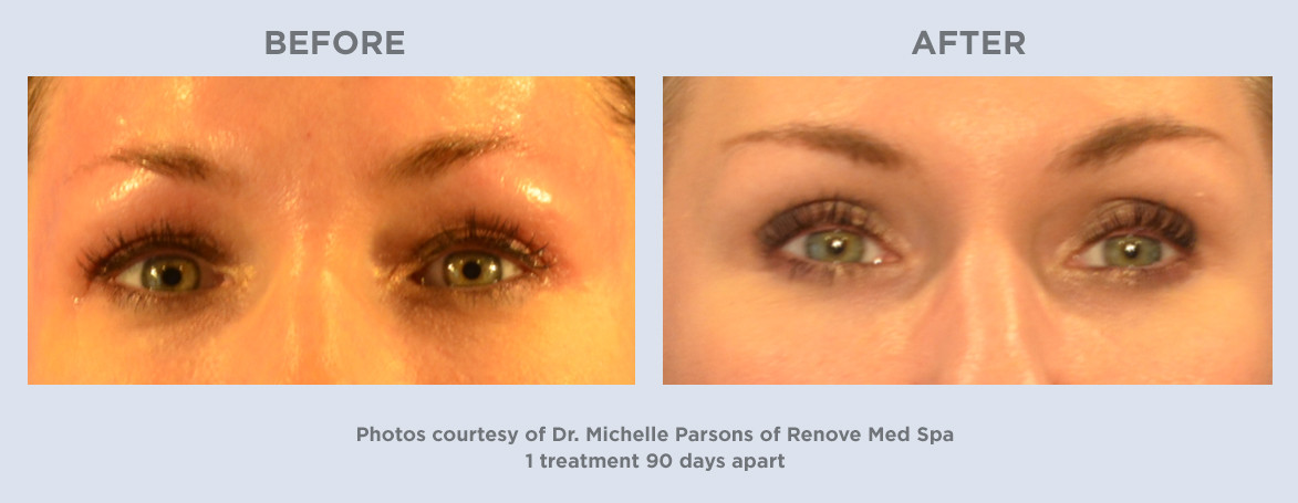 Ultherapy-1treatment-90days-Woman-Front.