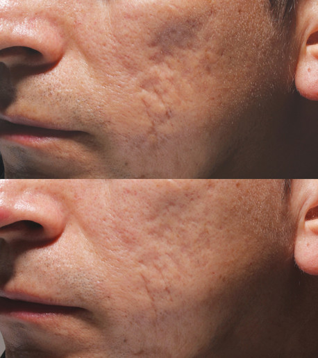 Acne_Patient_6_before_after_left.jpg