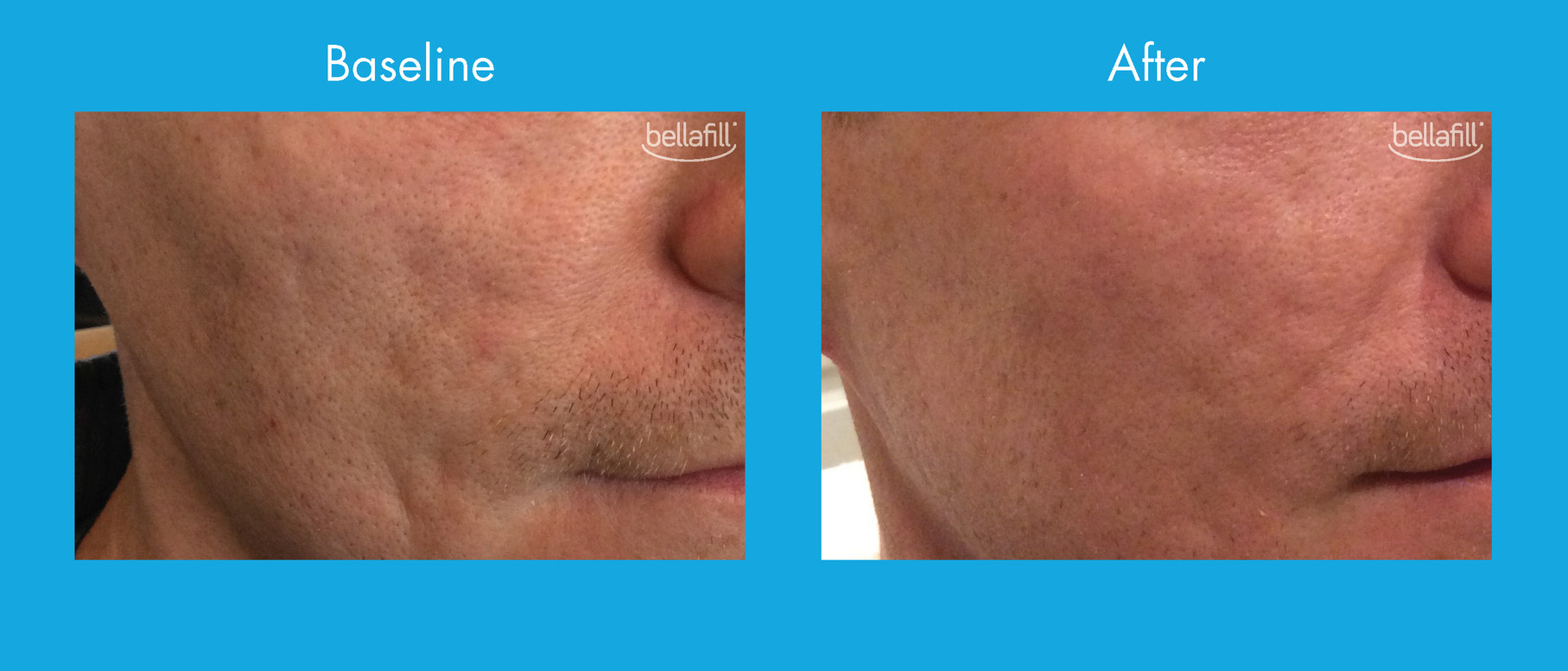 Acne Scar Before & After - New_Page_3.jp
