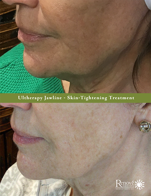 Ultherapy Jawline-BA-Office 85x11-LR.png