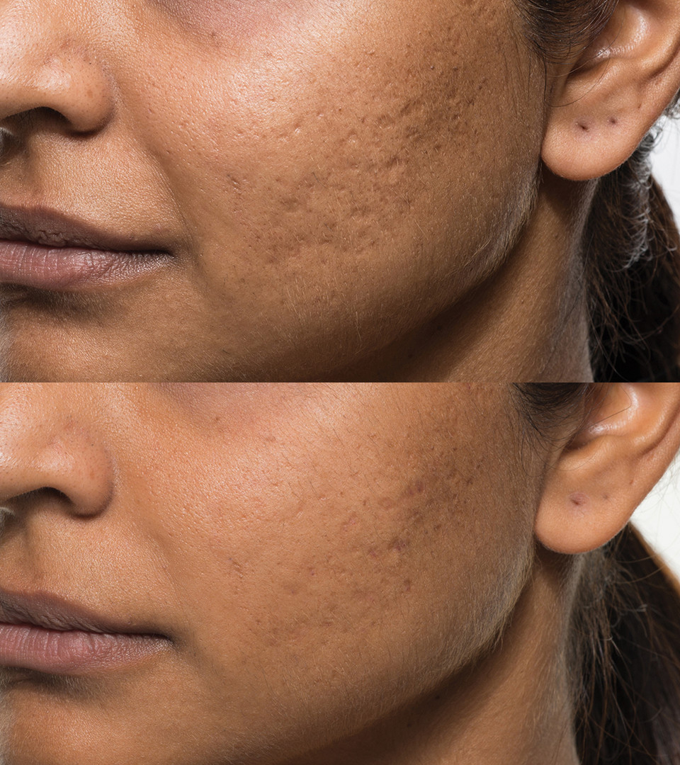Acne_Patient_2_before_after.jpg