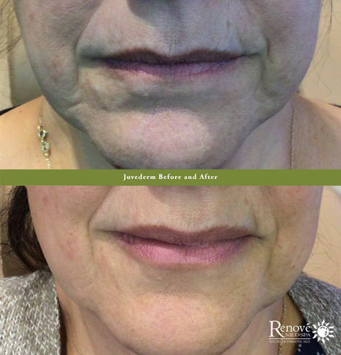 Juvederm Frown Before and After