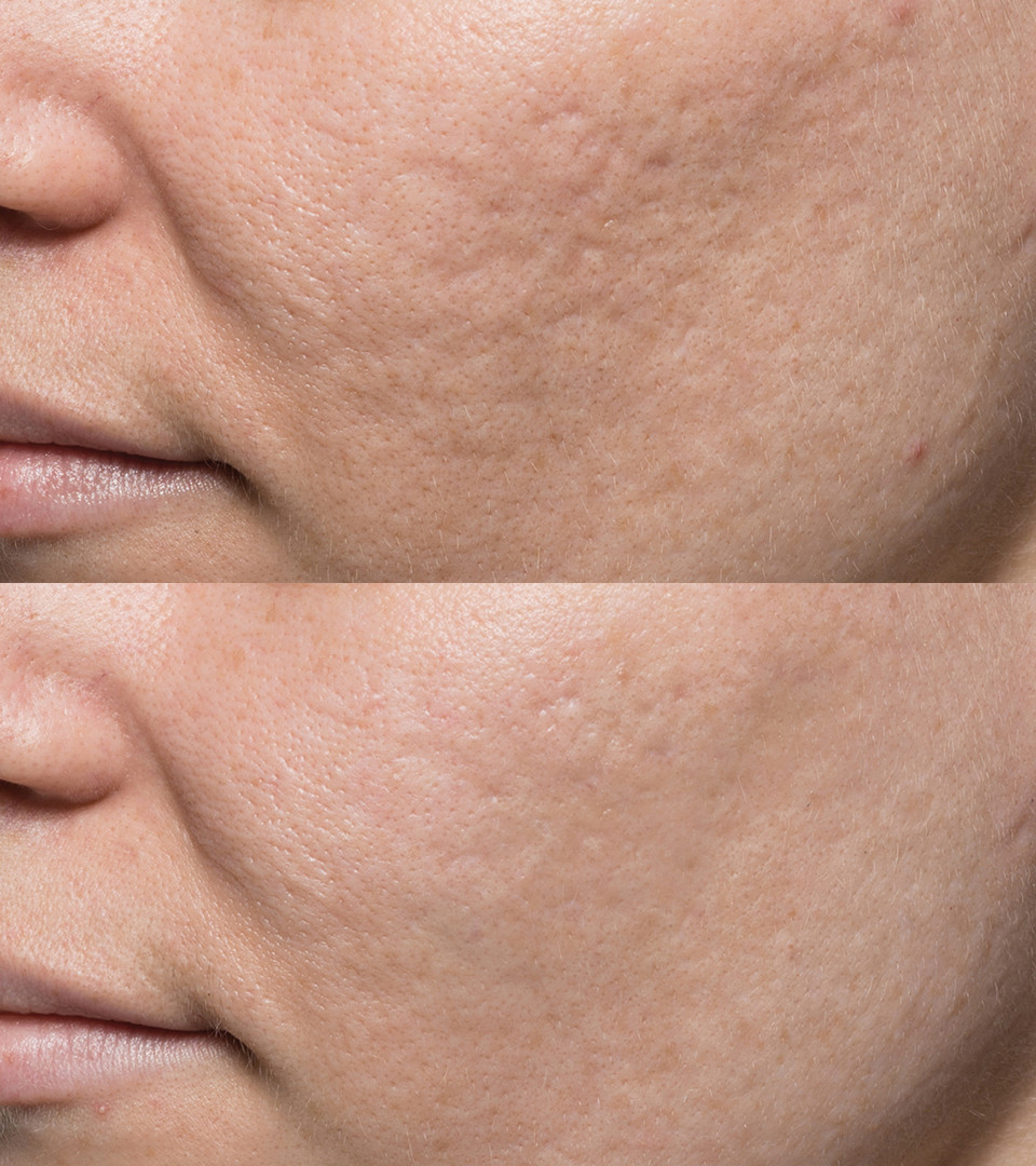 Acne_Patient_5_before_after.jpg