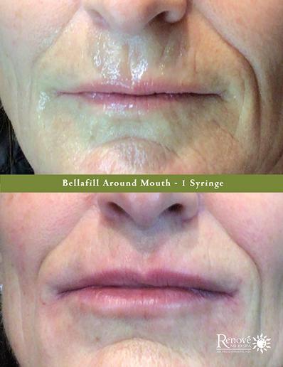 Bellafill Around Mouth - 1 Syringe