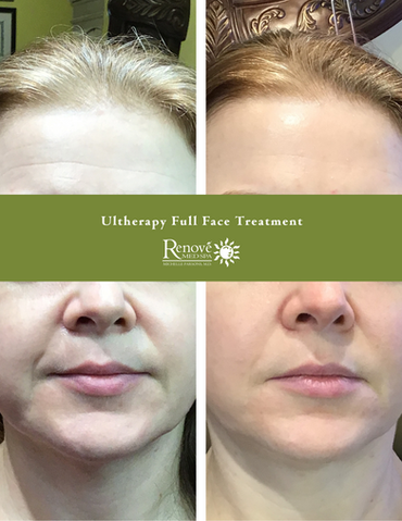 Ultherapy Full Face-BA-Office-85x11.png