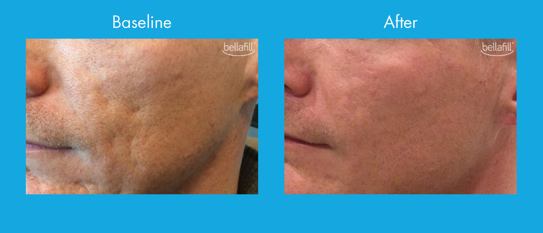 Acne Scar Before & After - New_Page_2.jp