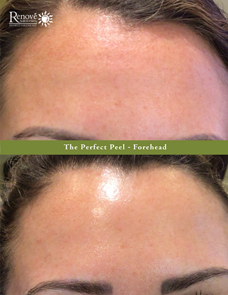 The Perfect Peel Forehead