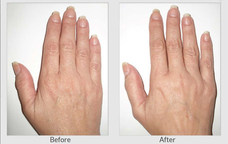 Before and post 1 SkinTyte™ treatment