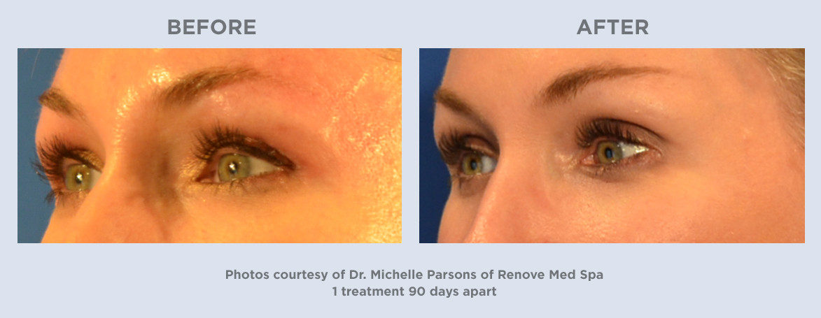 Ultherapy-1treatment-90days-Woman-34.jpg
