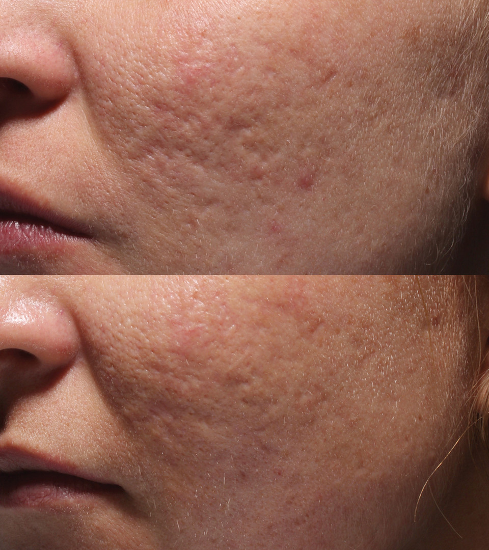 Acne_Patient_3_before_after.jpg