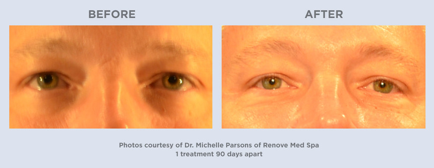 Ultherapy-1treatment-90days-Man-Front.jp