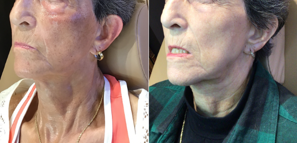 Radiofrequency Microneedling with Platelet Rich Plasma, 3 treatments