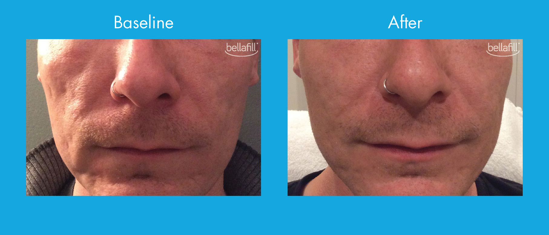 Acne Scar Before & After - New_Page_1.jp