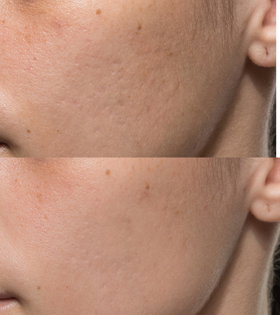 Acne_Patient_4_before_after.jpg