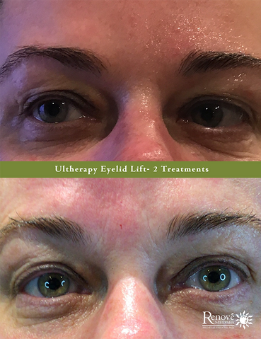 Ultherapy Eyelid Lift- 2 Treatments