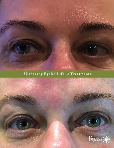 Ultherapy Eyelid Lift- 2 Treatments