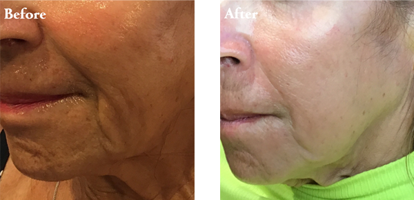 Before After Jowls