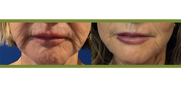 Radiofrequency Microneedling with Platelet Rich Plasma, 2 treatments